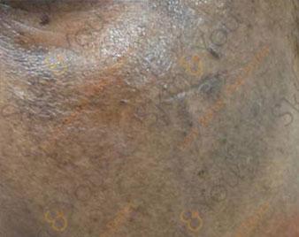 Post Inflammatory Pigmentation